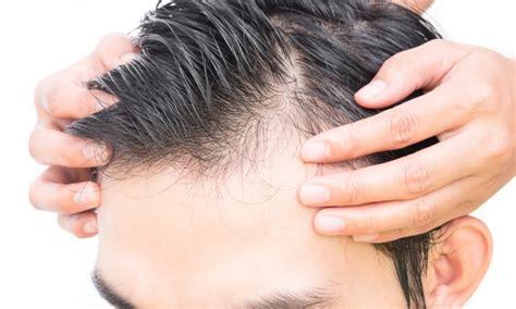 hair loss in 60 year 薄毛の種類に合わせた髪型11選 ハゲでも似合うヘアスタイル メンズ smartlog