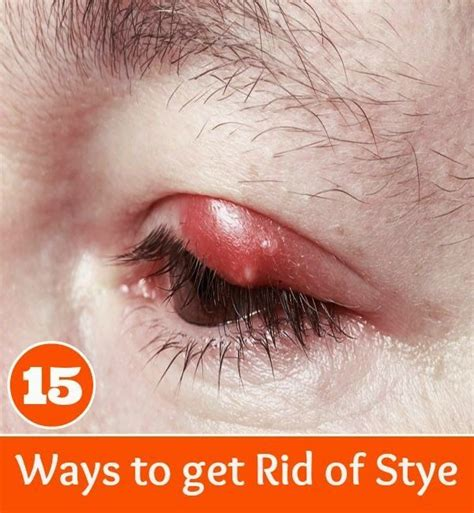 1000 images about diy medicines on pink eye