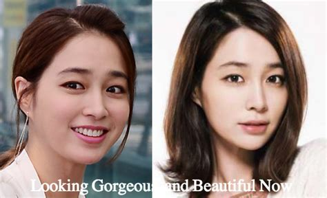 lee seung gi jaw surgery lee min jung plastic surgery before and after photos