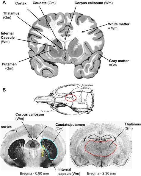 coronal section of skull the 77 best images about brain zoom out on pinterest