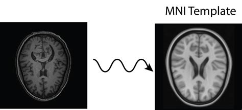 mni template neuroconductor exle fmri task processing