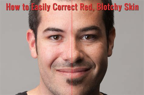 pink skin how to quickly and easily correct blotchy skin in photoshop slr lounge