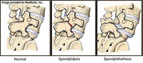 scotty fracture spondylolysis symptoms treatment
