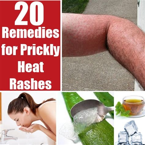 20 home remedies for prickly heat rashes diy find home