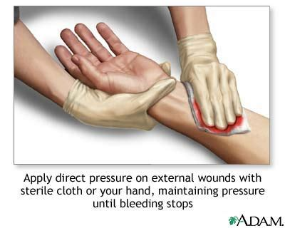 how to stop bleeding on a how to stop bleeding wikybrew