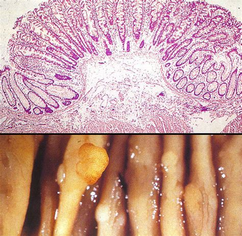 changes in bowel habits colon cancer nbme surgery shelf
