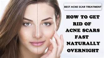 how to get rid of acne home remedies how to get rid of acne scars and pimples fast naturally