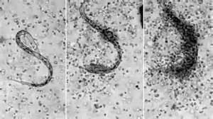White Blood Cell In Stool by Amazing Captures Moment The Immune System Takes A Worm Daily Mail