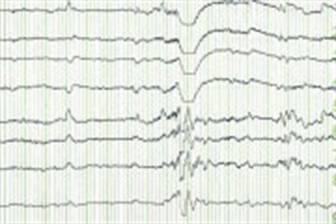 eeg pattern recognition quiz a closer look at eeg epilepsy society