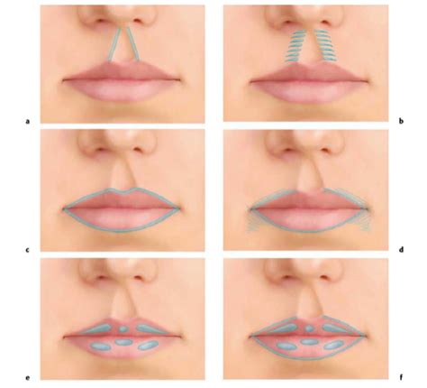 injection volume 3 books lip enhancement resella ccs canada