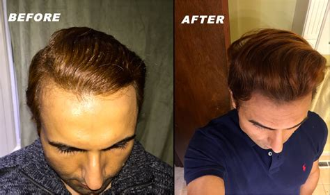 natural hair styles for receding hair line various tips tricks models actors use for receding