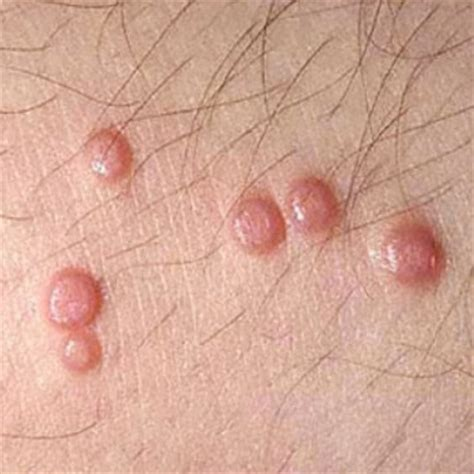 8 cures for molluscum contagiosum how to cure molluscum