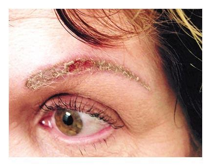 eye tattoo side effects adverse reactions after permanent makeup procedures nejm