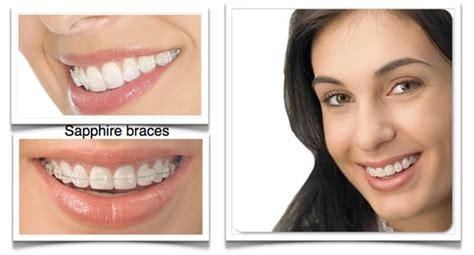 Harga Clear Braces jenis behel kawat gigi murah jogja klinik gigi