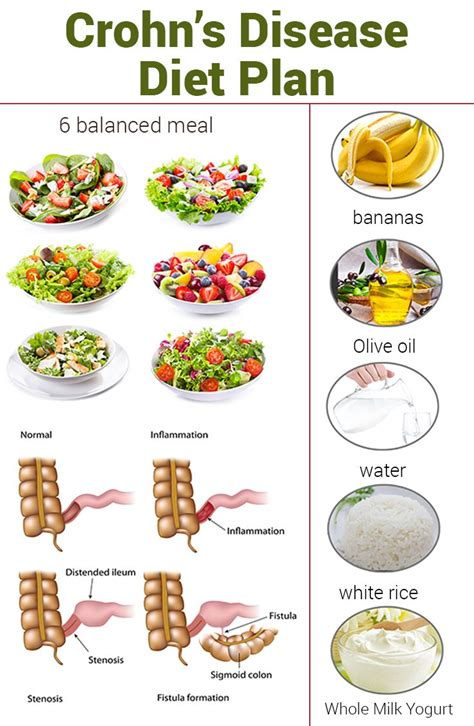 Do You Get Diarrhea When You Detox by Crohn S Disease Diet Plan What Is It And How Does It