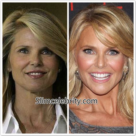 celebrity neck lift christie brinkley plastic surgery before and after photos