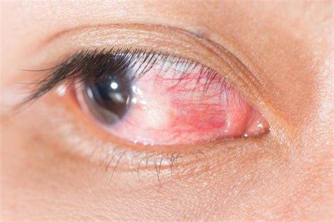 tato pada bola mata kanker mata gejala penyebab dan mengobati alodokter