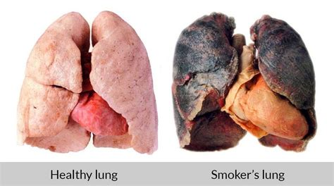 Lung Detox After Quitting 5 ways to cleanse your lungs after quitting