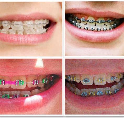 Harga Clear Retainer jenis jenis kawat gigi jenis behel macam kawat gigi