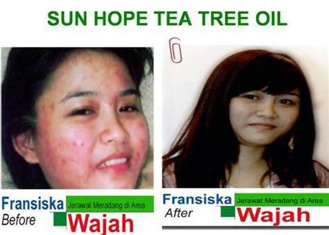 sun hope indonesia produk sun hope deep sea sun hope