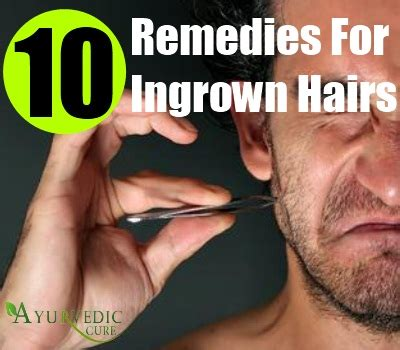 home remedies for ingrown hair top 10 home remedies ingrown hairs home remedies natural treatments cure