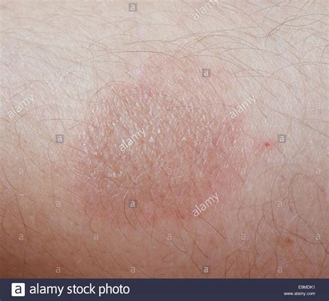burn scar stock photo 57476164 burn scar stock photos burn scar stock images alamy