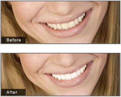 facefilter facial makeup  ultimate photo beauty kit