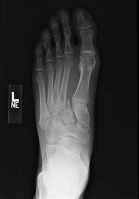 Lisfranc fracture-dislocation | Image | Radiopaedia.org