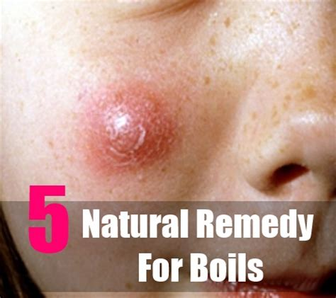 home remedies for boils treatments for boils