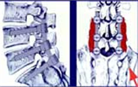 bandscheibenvorfall wann operieren operationen der diskushernie lws