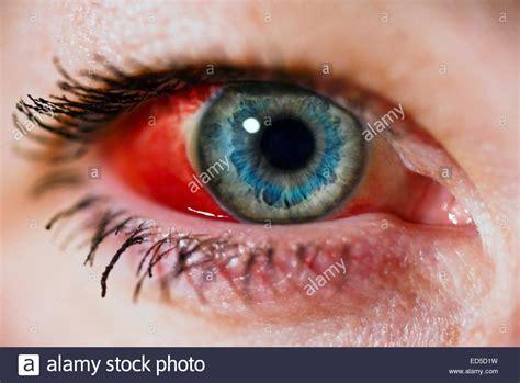 blood in s eye s eye with broken blood vessel subconjunctival hemorrhage stock photo royalty