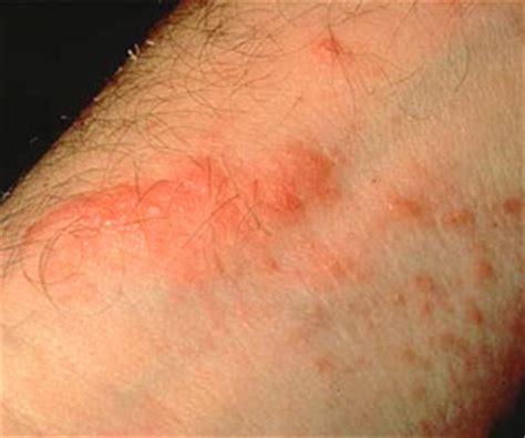 poison sumac rash images