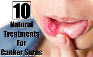 home remedy for canker sores 10 amazing treatments for canker sores search