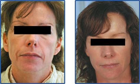 laser wrinkle removal before and after wrinkle removal and laser skin resurfacing orange county