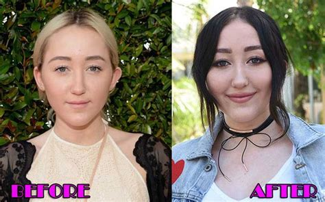 Detox Icunt Before And After Plastic Surgery by Noah Cyrus Plastic Surgery Before And After Pictures