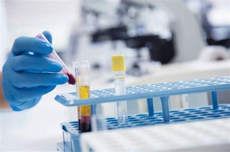 protein z mangel ursache antithrombin iii das sagt der blutwert