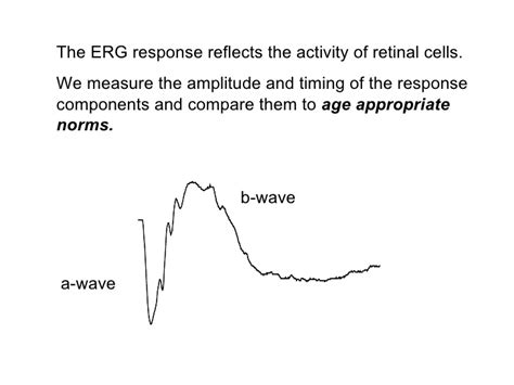 pattern appearance vep electrophysiology erg vep