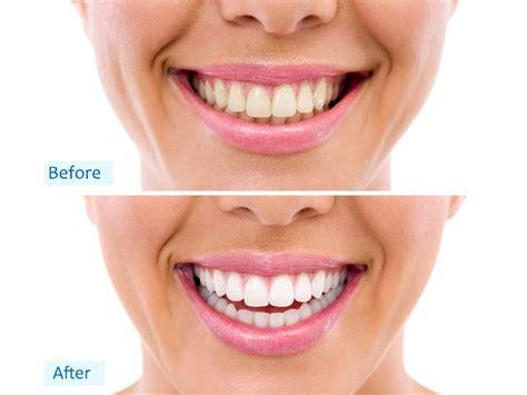 palm square dental care dentist  neale st kennington