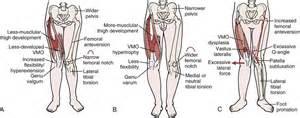 ... +Anteversion+Symptoms Figure 12-9 Normal tibiofemoral shaft angle Q Angle Genu Valgum