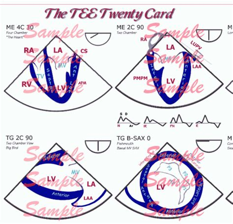 Section 20 Care Order by 20 Reference Card Comprehensive Intraoperative