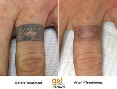 tattoo removal on finger 1000 images about tattoo removal in progress on pinterest