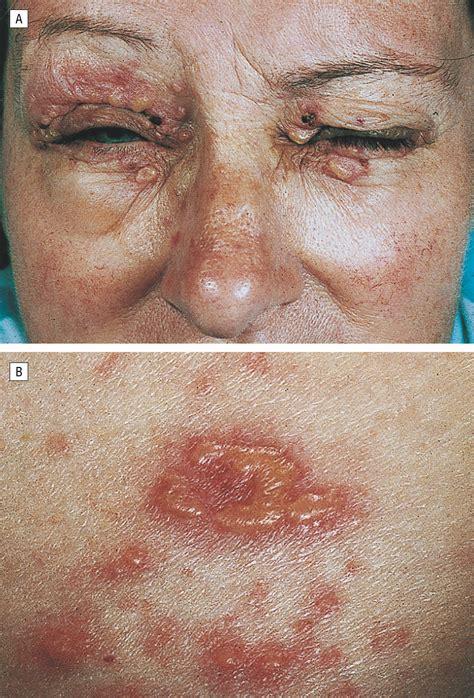inflammatory variant  epidermolysis bullosa acquisita