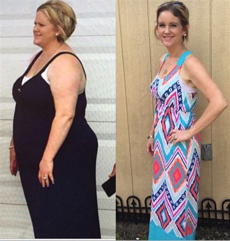 Gastric Sleeve Before And After Photos