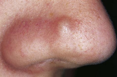 lump on lump on nose side skin skin nose bridge cartilage tip end of nose