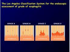 GERD La Classification For Esophagitis