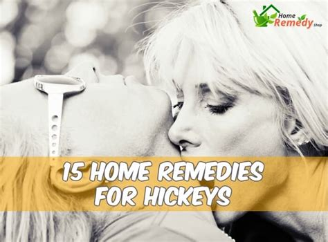 15 home remedies for hickeys home remedy shop