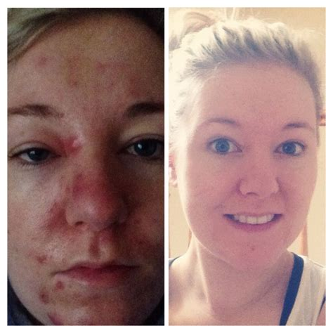 Juice Detox Before And After by Before After Juice Plus Detox Juiceplus