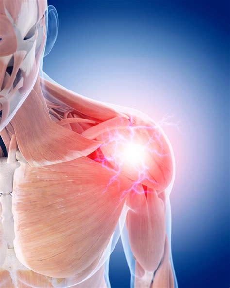 c section shoulder pain innovation stem cells for shoulder injuries spinal cord