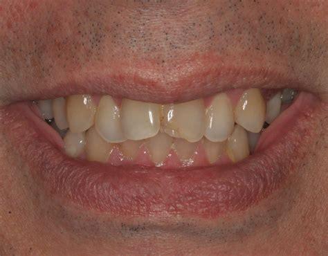gallery testimonials preventive dental
