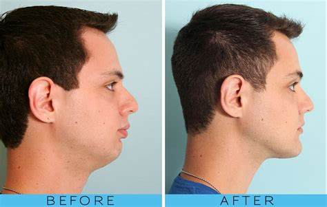 short hair for overbite weak jaw line chin implant before and after khaleej mag